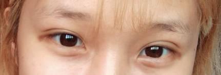 무쌍-쌍커풀생김-풀림-마침내 쌍수 후기!!!! (40) | 인스티즈