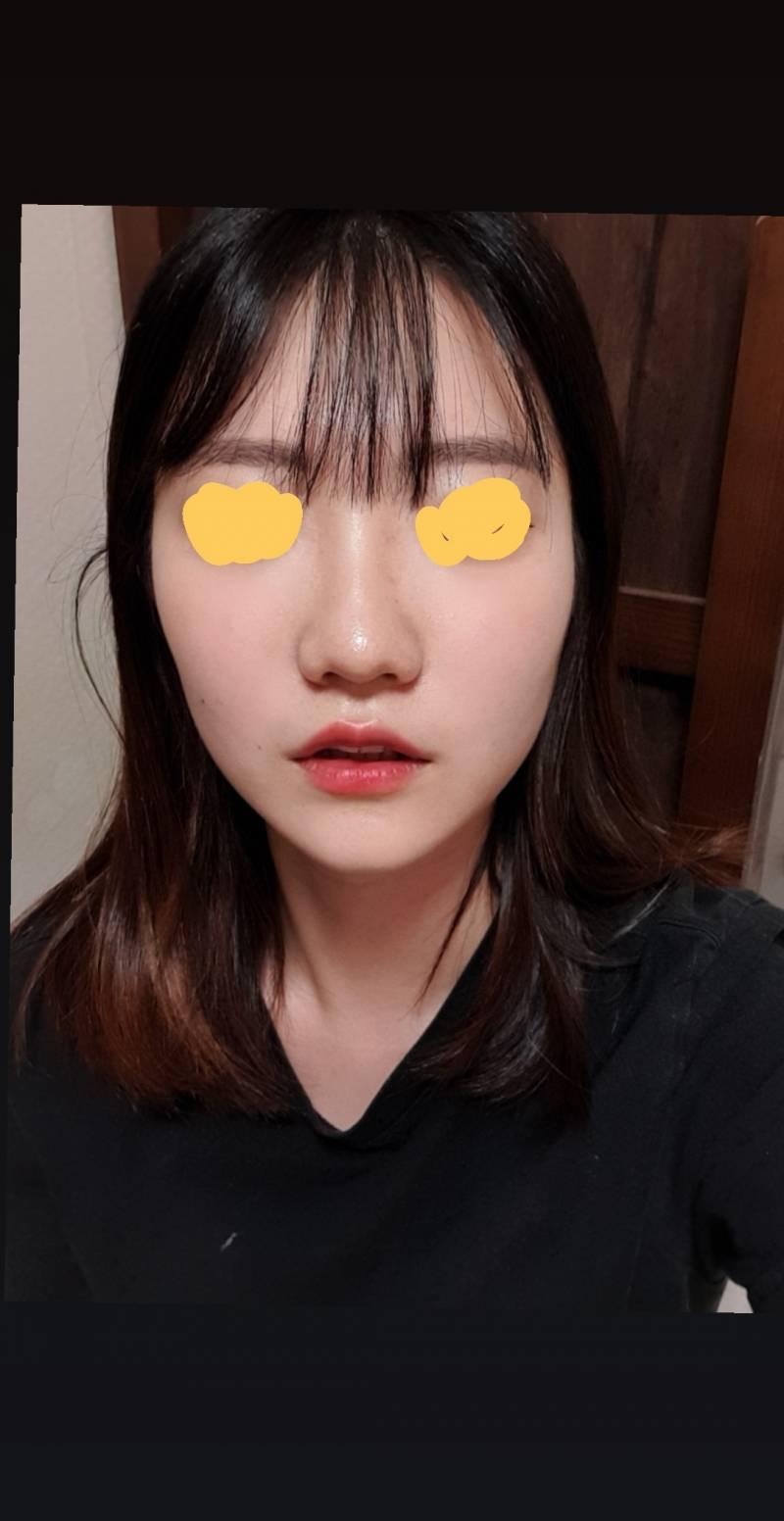얼굴에 비해 코가 큰편이야?? | 인스티즈
