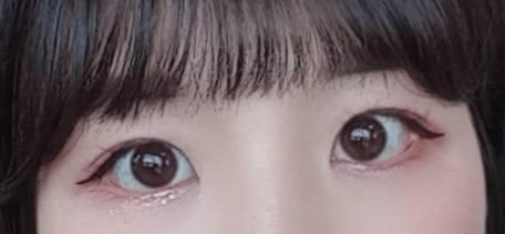 뒷트임 하고싶은 꼬막눈 쓰니 40 | 인스티즈