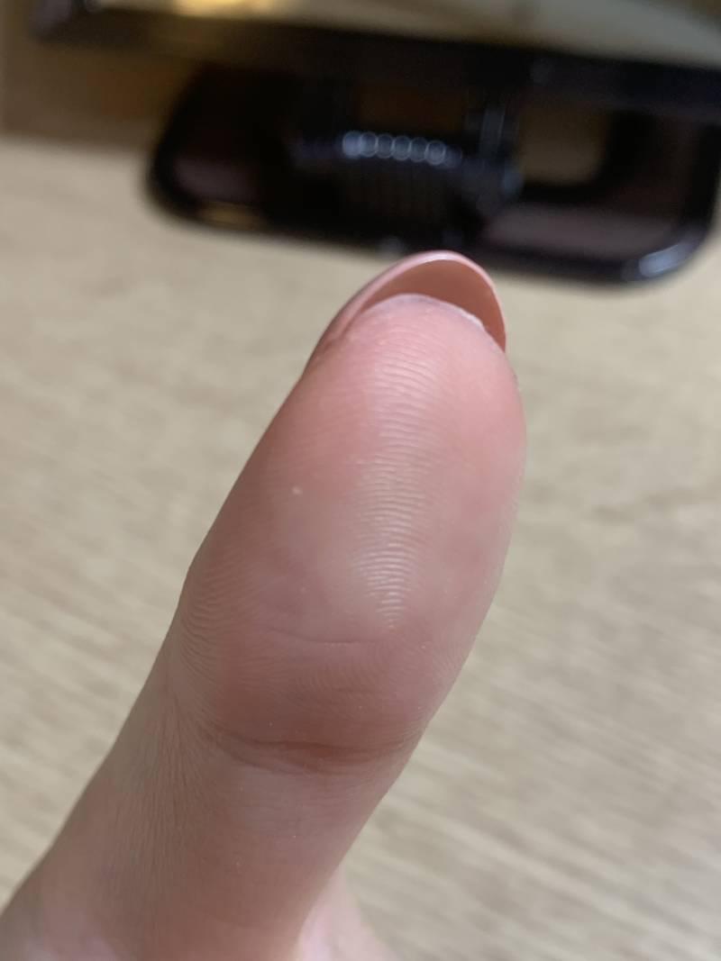 이거 손톱 살 차오르는 거야?? | 인스티즈