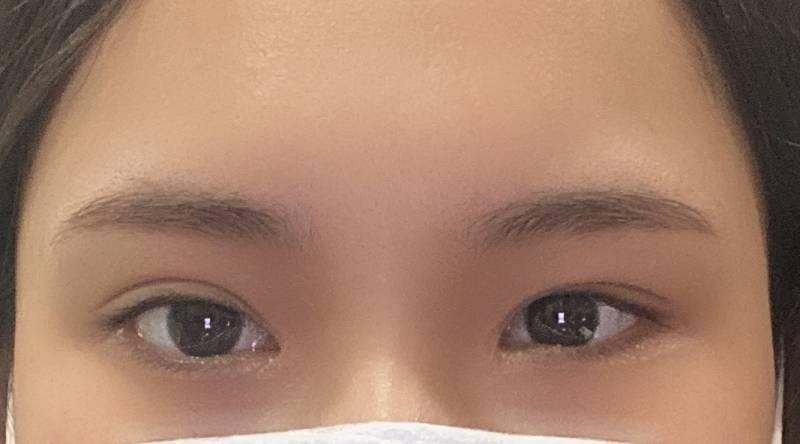 제니님 눈 사진들고가서 쌍수 재수술한 훅이🌟4040 | 인스티즈