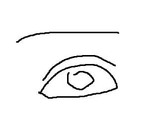 나 눈 재수술 했는데 진짜 티나게 됐거든 예쁘다는 소리는 들어도. 또 재수술하려고 하는데 | 인스티즈