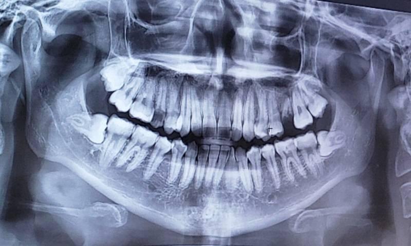 치과 갔다ㅠ온 후기ㅋㅋㅋㅋㅋㅋㅋ   인스티즈