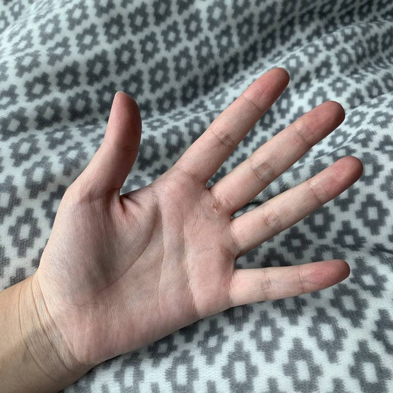 이게 단풍손이야?? 여자들이 안 좋아하는 손...? | 인스티즈