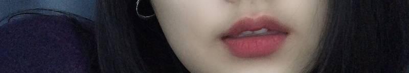입술필러 맞으려는데 효과 좋을까?? | 인스티즈