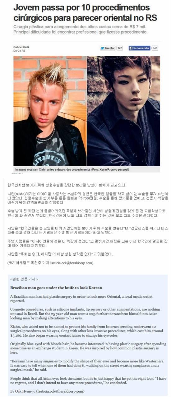 한국인처럼 되려고 성형 10번 한 브라질 남자 | 인스티즈