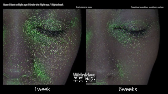 잠 못잤을때 충격적인 피부변화..ㄷㄷ..gif | 인스티즈