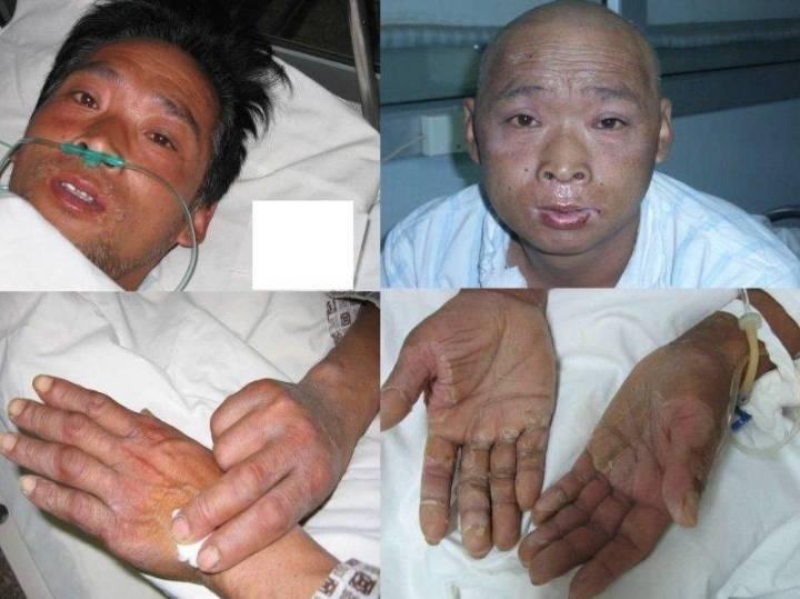 난감)방사선에 피폭되면 어떻게될까(도카이무라 방사선 피폭사고) -혐오사진 jpg | 인스티즈
