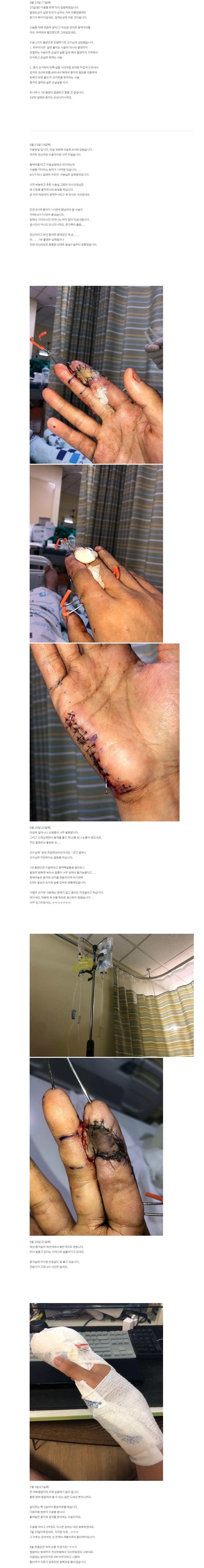 혐) 쇠살모사에 물린 남자...후기 | 인스티즈