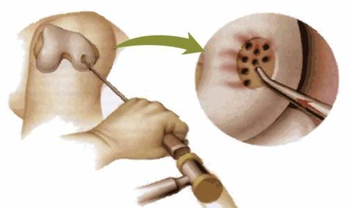 뼈에 구멍을 내는 수술 천공술 (혐오주의) | 인스티즈