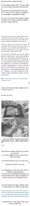 한국에서 기생충 박멸의 계기가 되었던 사건.jpg (혐오주의) | 인스티즈