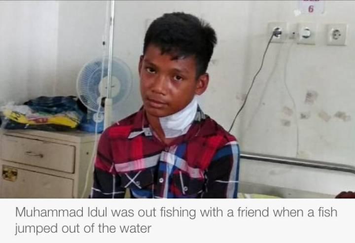 물고기에게 목을 찔린 소년 (충격이미지 주의) | 인스티즈