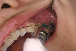 치과가 싫은 이유 | 인스티즈