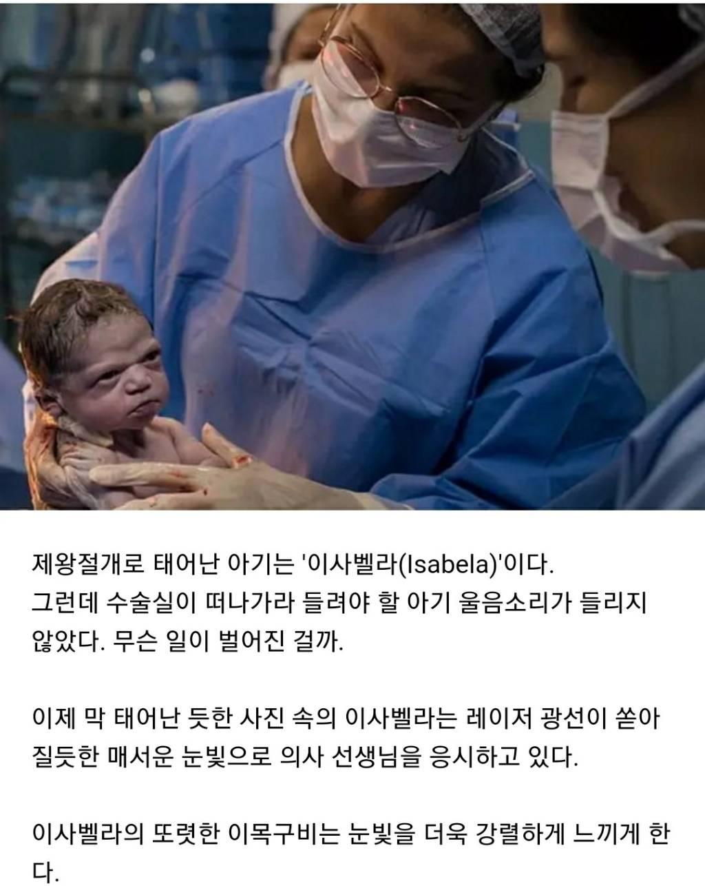 태어났는데 안 울고 의사쌤 노려보며 버티다 엉덩이 맞고 결국 울음 터뜨린 아기   인스티즈