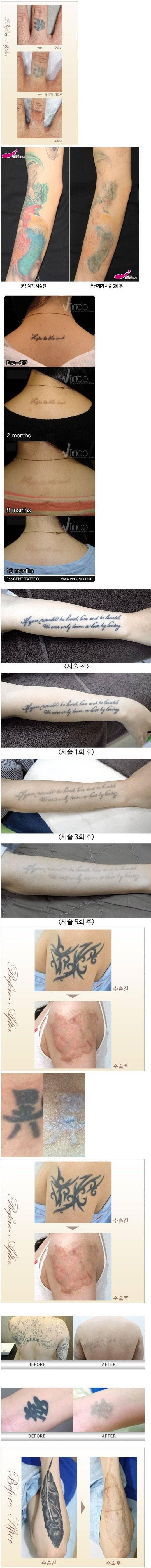 문신을 하지 말아야 하는 이유 (혐오주의)   인스티즈