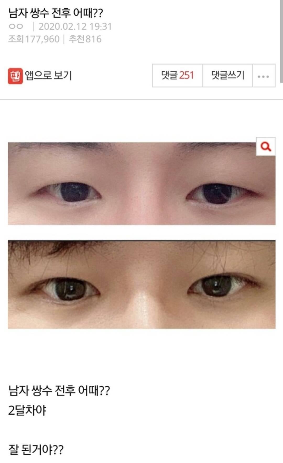 남녀 쌍수 후기.jpg | 인스티즈