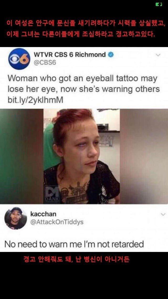 안구에 문신을 새긴 여성의 경고.jpg   인스티즈