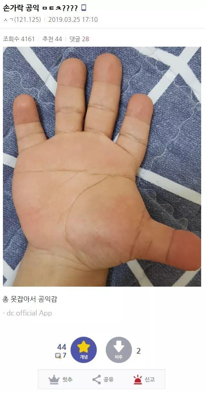 손가락때문에 4급 판정받은 공익.jpg | 인스티즈