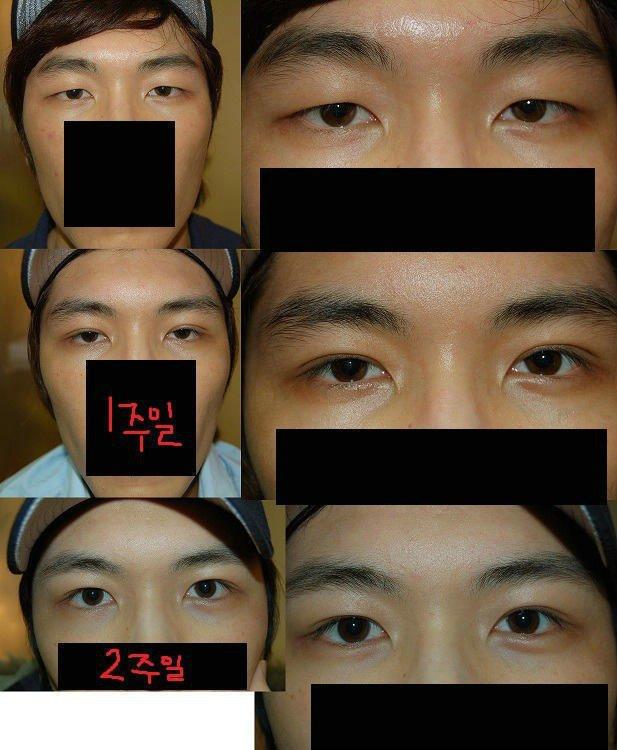 요즘 많이 한다는 남자의 눈성형 | 인스티즈