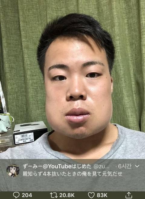 사랑니4개를 한꺼번에 뺀 일본인.jpg | 인스티즈