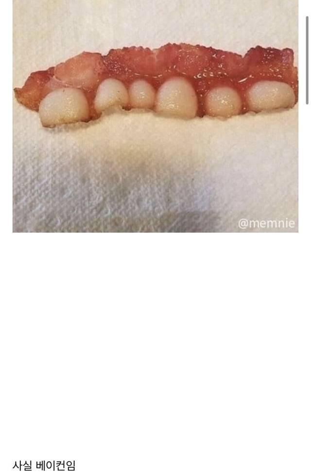 잇몸채로 이빨 다 뽑아버림.jpg (혐오주의) | 인스티즈