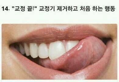 치아교정 시 겪는것 | 인스티즈