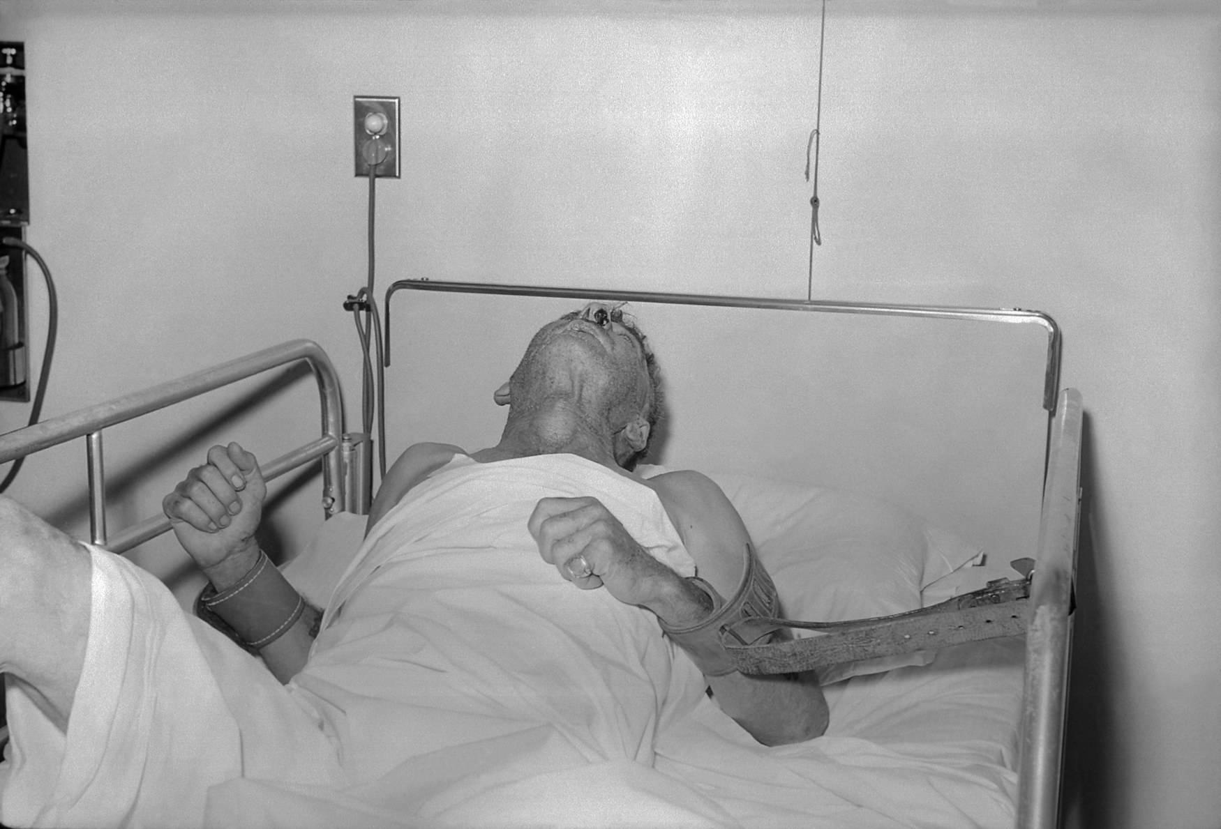 오늘날까지도 치료법이 발견되지 않은 치사율 100%의 전염병   인스티즈