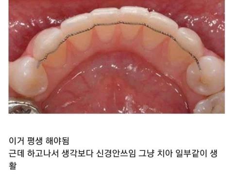 치아교정 전에 이거 모르고 하는 사람 은근 많음.jpg | 인스티즈