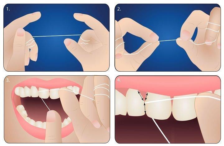 치실질 처음 하는 사람들이 의외로 종종 모르는거 | 인스티즈
