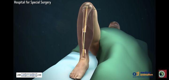 다리뼈 아작나면 의느님이 해주는 것 | 인스티즈